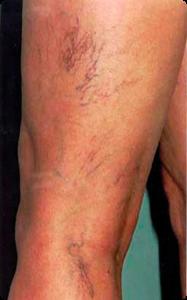 Blodsprængninger på ben