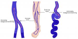 Varicer i benene