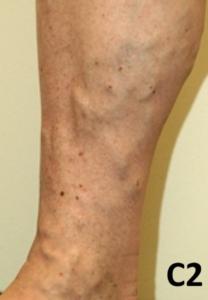 Hævede blodårer på benene