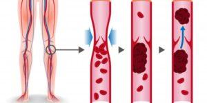 Årebetændelse i benene